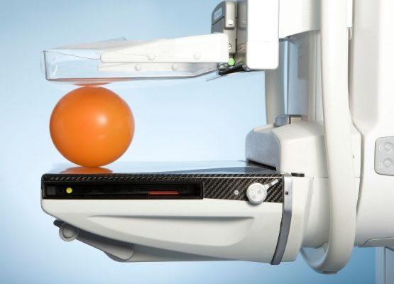 Τμήμα Ψηφιοποιημένης Μαστογραφίας